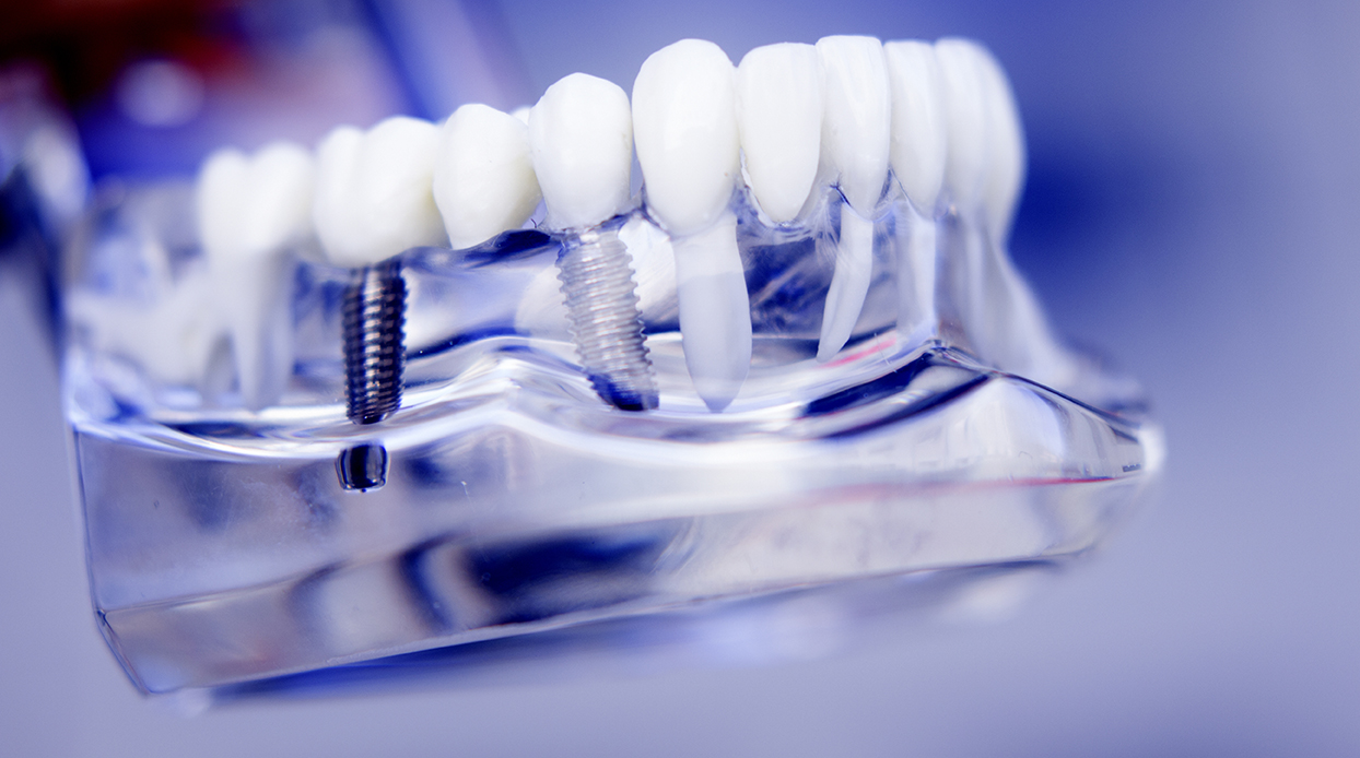 Dentists dental teeth implant