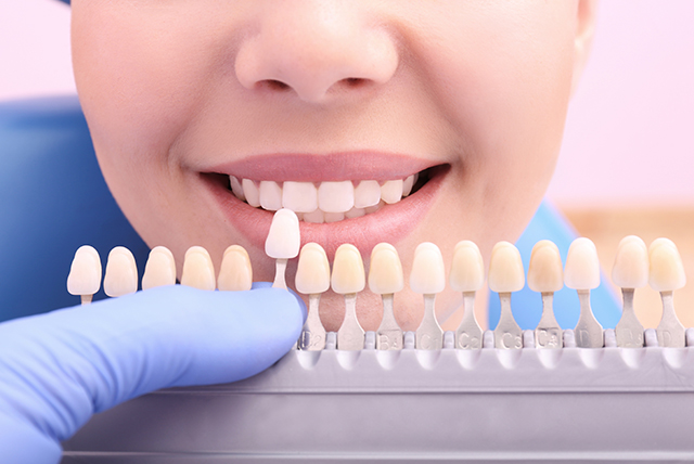 Dentist checking and selecting color of young woman's teeth, clo