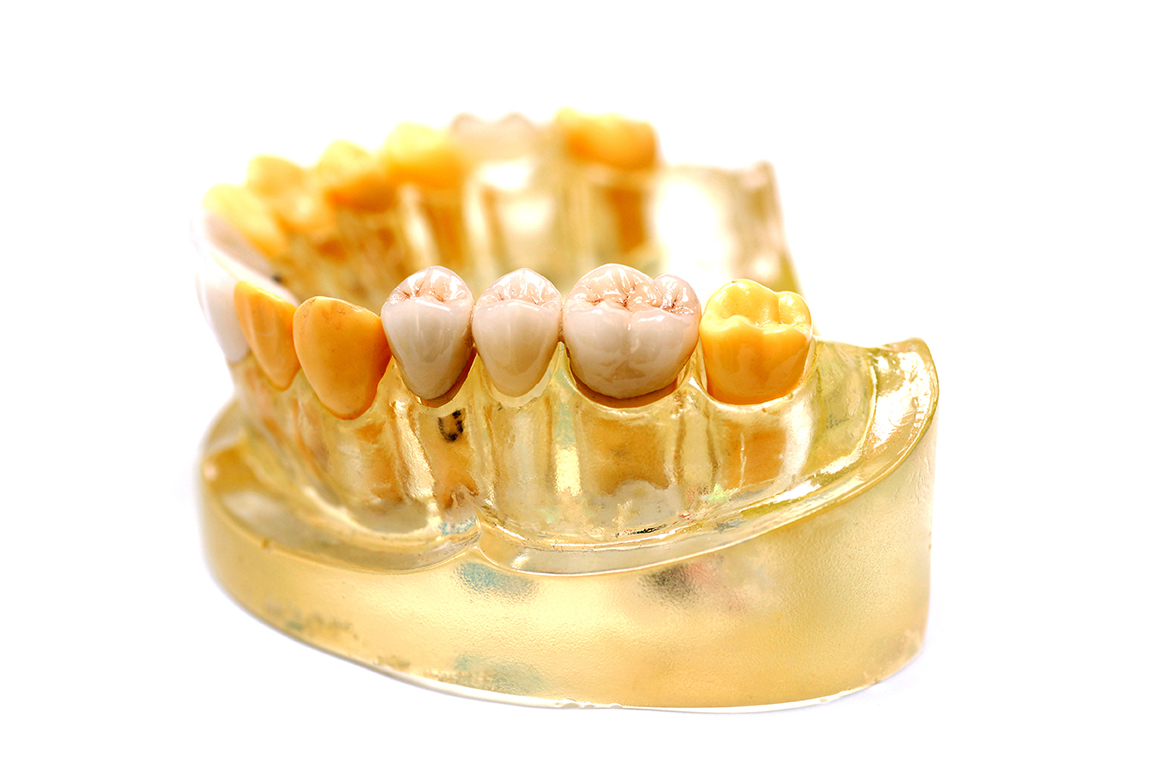 Dental implant artificial teeth and gum